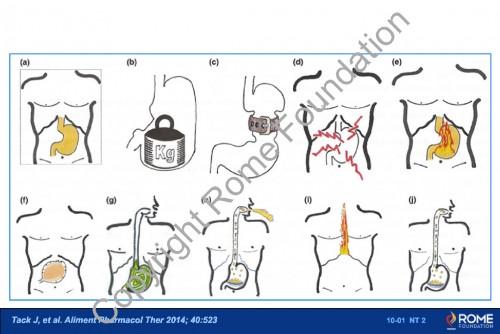 Chapter 10 - Gastroduodenal