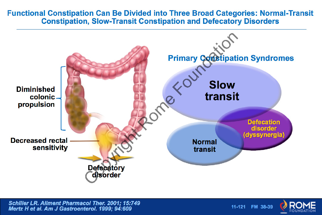 Bowel 121 - Functional Constipation Can Be Divided into Three Broad  Categories